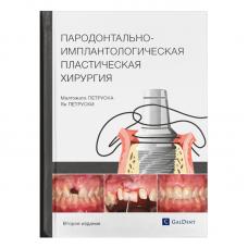 Պարոդոնտալ-իմպլանտոլոգիական պլաստիկ վիրաբուժություն