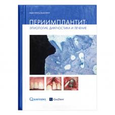 Պերիիմպլանտիտ. էթիոլոգիա, դիագնոստիկա, բուժում